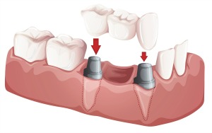 Dentistry for the Entire Family Dental Bridge Illustration