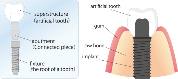 Dentistry for the Entire Family Dental Implants Illustration Graphic
