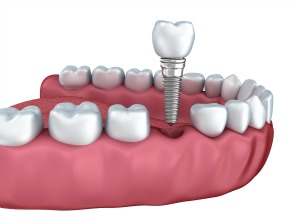 Dental implant illustration of a single tooth implant