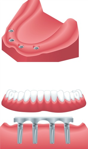 Dentistry for the Entire Family Dental Implants Supported Denture