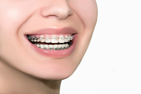 ceramic and teeth colored dental braces at dentistry for the entire family