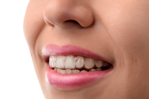 Invisalign (invisible dental braces) at Dentistry for the Entire Family
