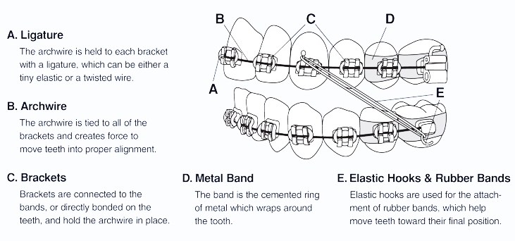 Dental braces terminology