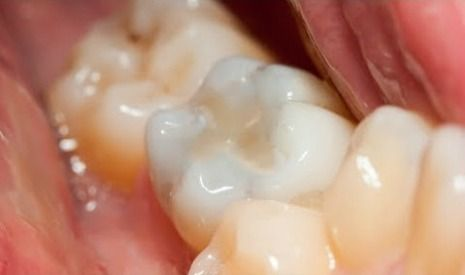 Composite dental fillings picture