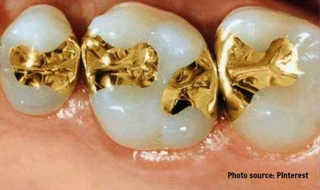 Dental fillings in fridley mn dentistry for the entire family gold dental fillings picture solutioingenieria Image collections