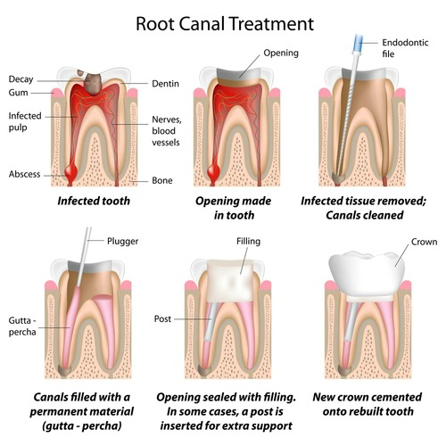 Call Dentistry for the Entire Family at 763-586-9988 to schedule an appointment with a root canal specialist