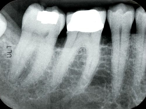 Digital dental periapical x-rays