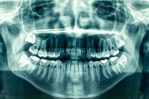 Panoramic dental x-rays