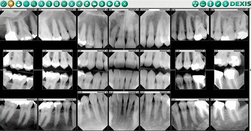 Full mouth dental x-rays