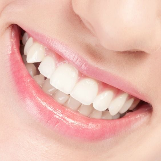 Healthy gums Recipe to Prevent Gum Disease