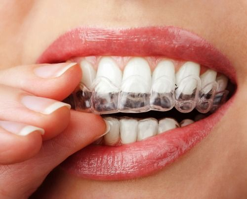 Professional Teeth Whitening Tray