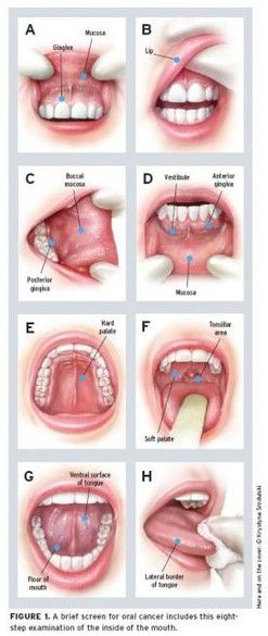 Oral cancer screening exam illustration