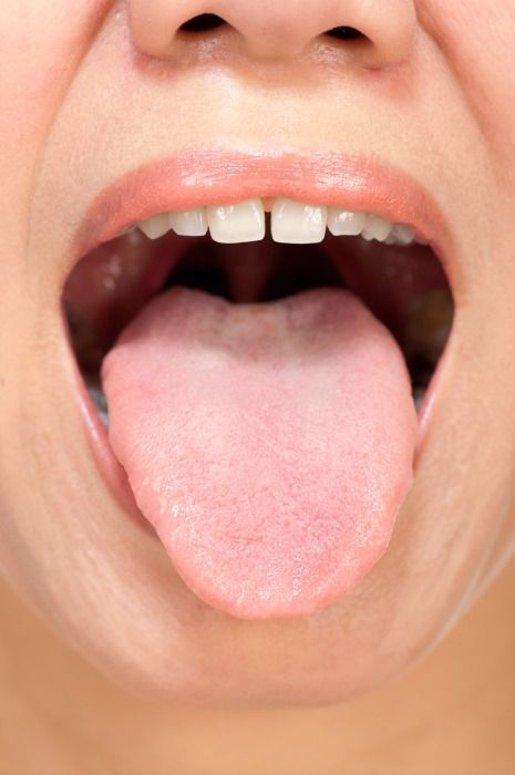 Tongue Care