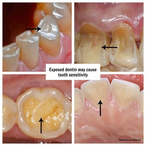 Pictures of teeth showing exposed dentin