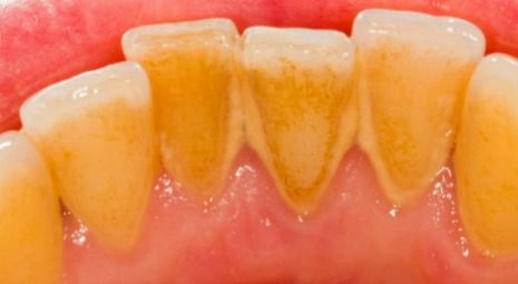 Hard tartar or dental calculus on teeth can cause teeth to be sensitive