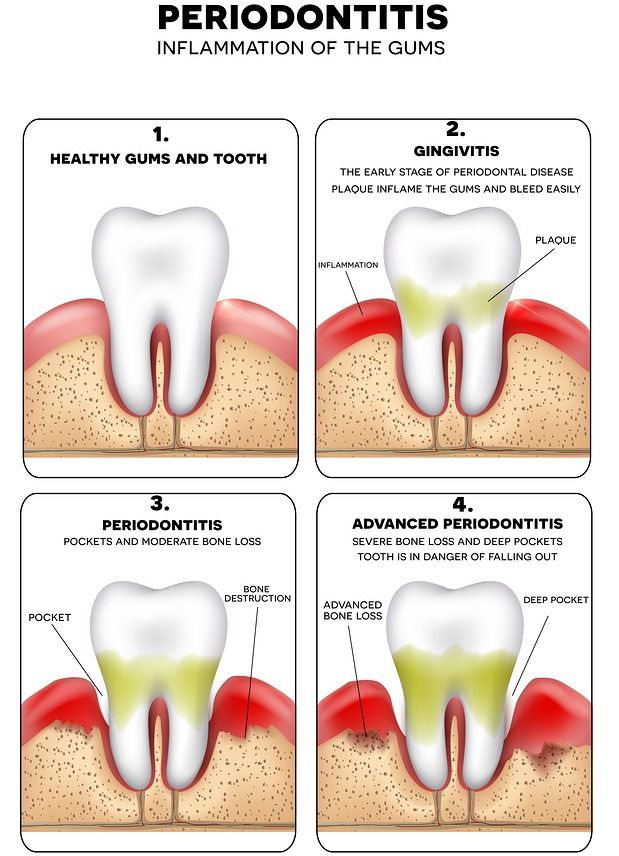 Three stages of gum disease illustration