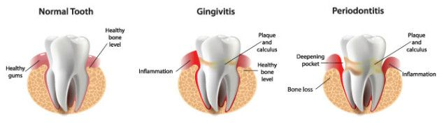Picture of difference between gingivitis and periodontitis