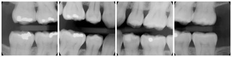 Bitewing x-rays enable dentist to check for cavities between teeth