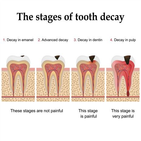 Stages of tooth decay illustration