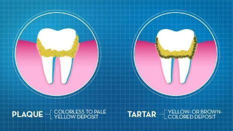 Plaque vs tartar illustration