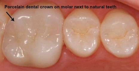 Porcelain dental crown next to natural teeth