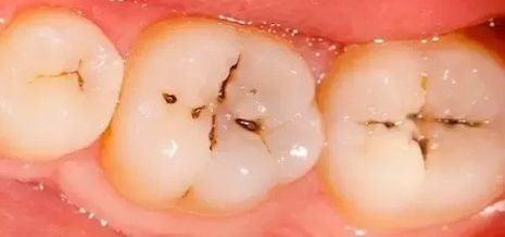 Black spot on tooth